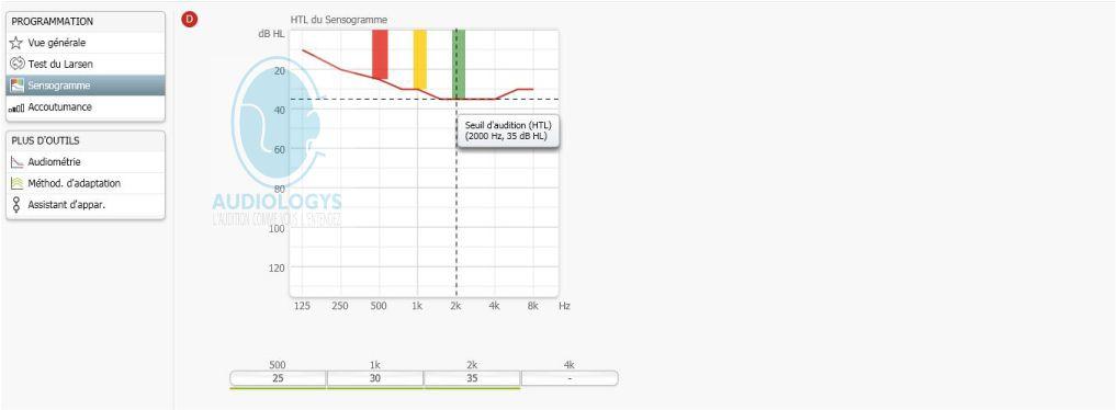Précision des réglages d'une audioprothèse (3 canaux) en fonction de l'audiogramme