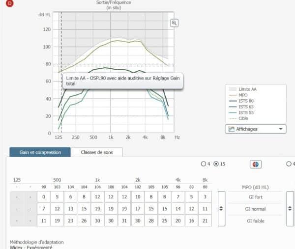 Illustration-réglages-appareil-auditif-15-canaux